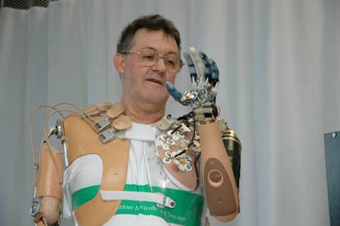 Beso bioniko baten erakusketa. Iturria: DARPA/ Johns Hopkins University APL Laborategia