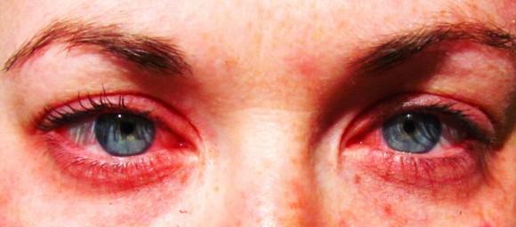 Begiak gorritzea da alergiaren sintoma arruntenetako bat (Arg.: Parrchristy / CC BY 2.0)