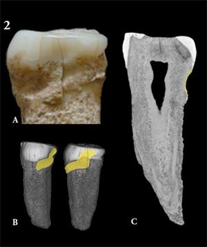 Bigarren aurreko hagin ezkerrekoaren argazkia (A), ATE-P4. Sima del Elefante (Atapuerca, Espainia). Aurreko hagina 3D modura berreraikia; horiz dago zotzak sortutako marka luzea (B). Mikrotomografia konputarizatuak emandako irudi parasagitala, horiz (goian, eskuinaldean): zotzak eragindako ildaska (C). Argazkia: Hortz Antropologiako taldea (CNEIH).