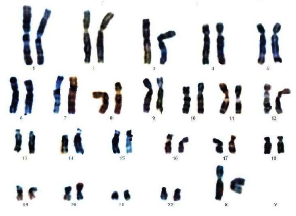 1. irudia: Emakume baten kariotipoa. (Argazkia: Creative Commons Attribution-Share Alike 3.0 via Wikimedia Commons)
