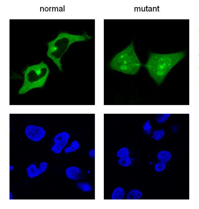 Irudia: UPSP21 proteinaren 144. aminoazidoaren mutazioak (500 aminoazido baino gehiago ditu) proteina hori zelularen nukleoan metatzea dakar, kanpoan egin beharrean. Irudia, mikroskopia fluoreszentearen bidez lortua, proteina kolore berdean erakusten du eta nukleoaren zelula, urdinean.