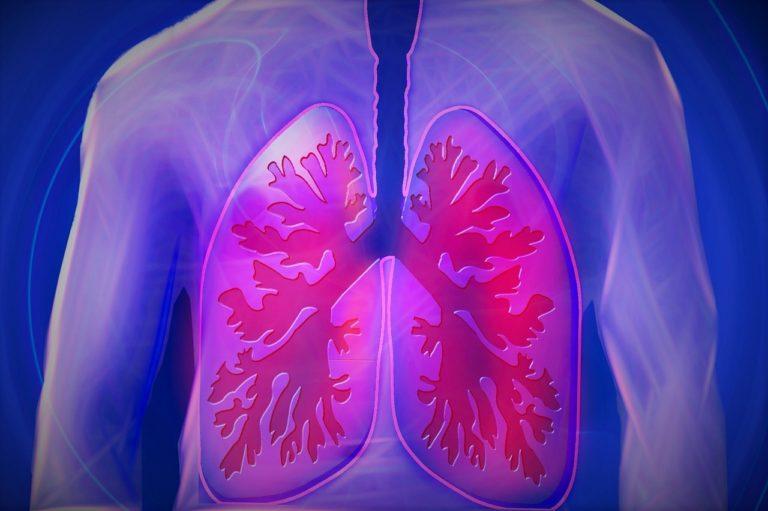 Pneumonia duten gaixoen eboluzio txarra iragarri nahian