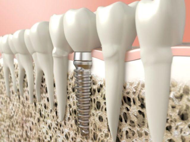 implantes-dentales-profilacticos-768x576