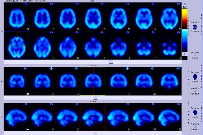 Efektu birsortzailea eta neurobabeslea parkinsonean