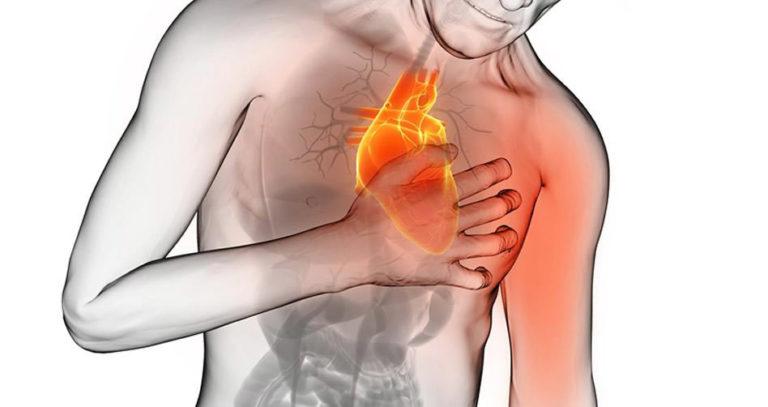 Ezberdinak gara miokardio-infartuaren aurrean