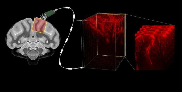 Ultrasoinuak, entzefaloaren barrualdera begiratzeko